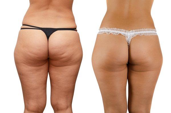 Vor/Nachher-Vergleich von Cellulite